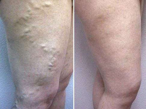 Evolución de la variz tras el tratamiento
