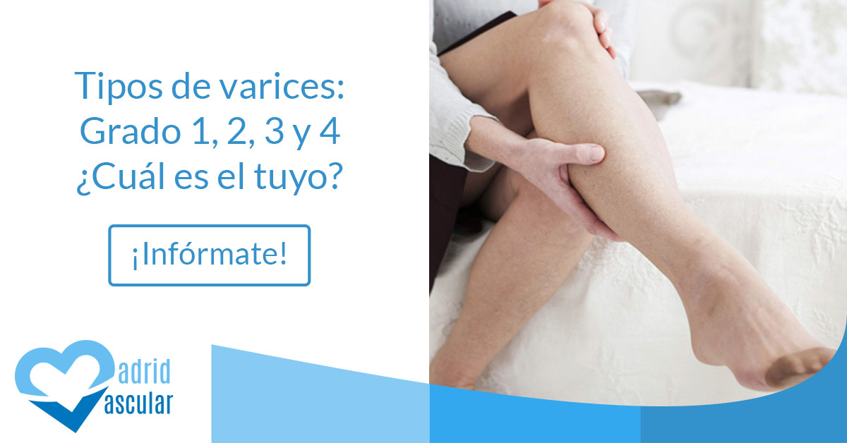 varicoza nu dar doare o venă crema în variganțe gravidă