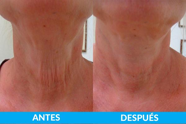 tratamiento piel cuello antes y después