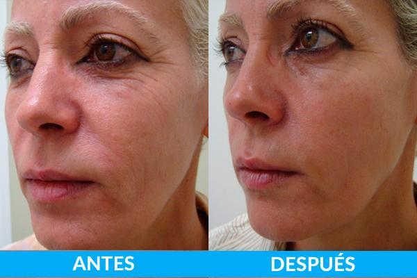 tratamiento arrugas antes y después