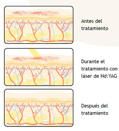 tratamiento de lesiones vasculares
