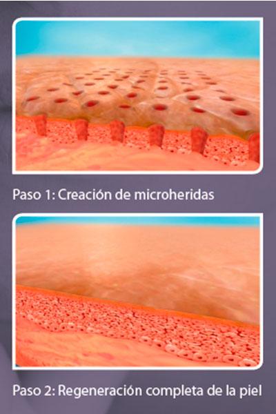 proceso de regeneración de la piel