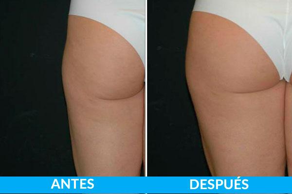 fotos antes y después tratamiento láser para mejora del tono y textura