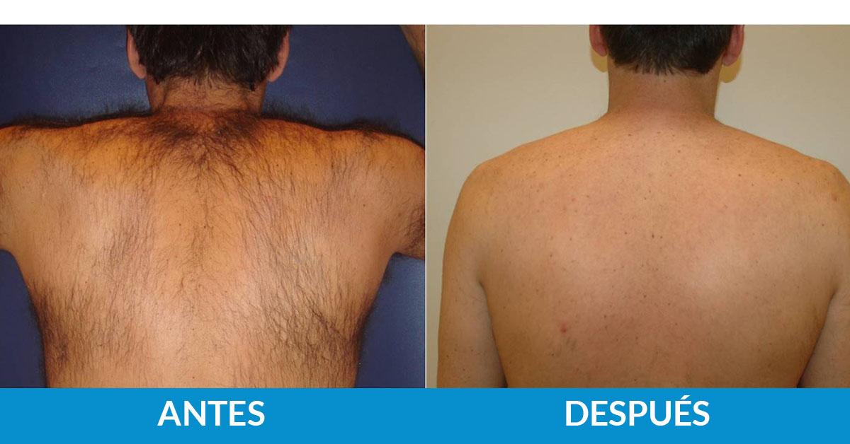 tratamiento antes y después fotodepilación médica espalda