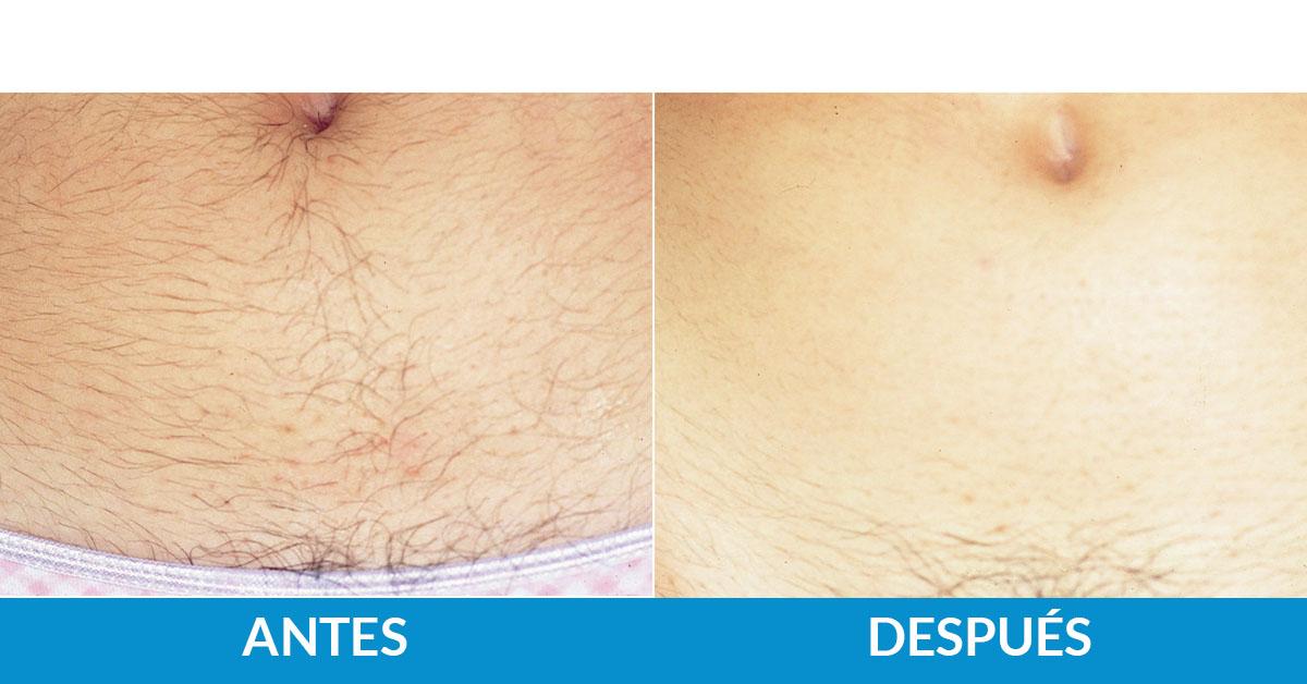 tratamiento antes y después fotodepilación médica línea alba